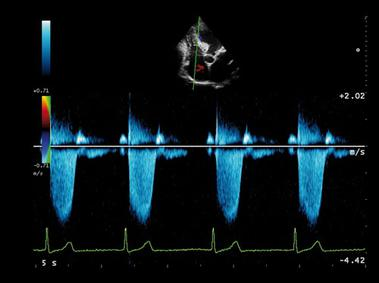 doppler alpha heart ultrasound