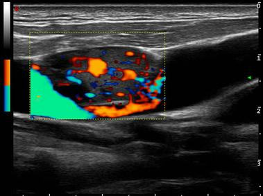 alpha doppler ultrasound