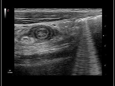 mylab ultrasound axial view