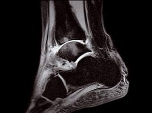 O-scan - Ankle STIR Sagittal