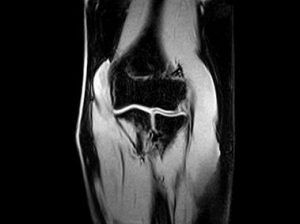 O-scan - Elbow XBONE Coronal